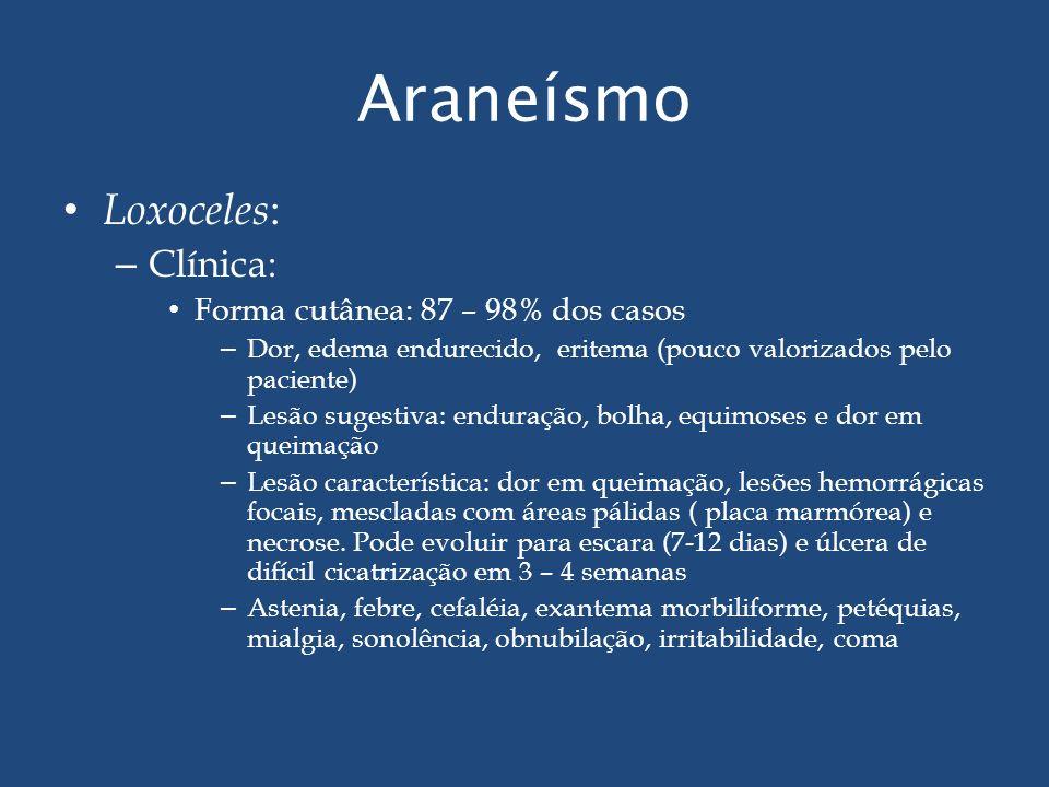 Araneísmo Loxoceles: Clínica: Forma cutânea: 87 – 98% dos casos