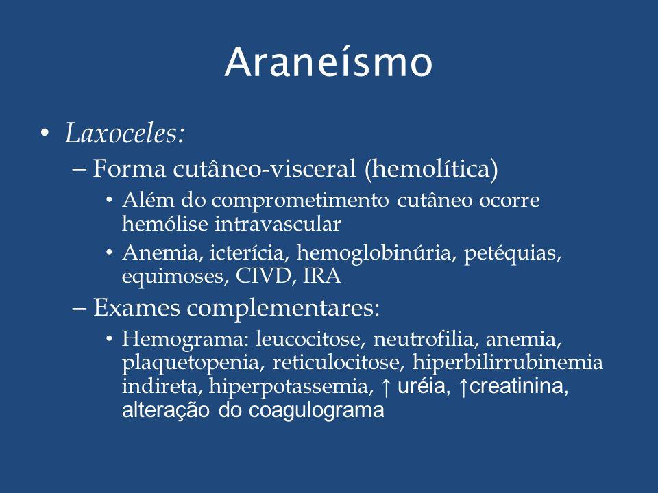 Araneísmo Laxoceles: Forma cutâneo-visceral (hemolítica)