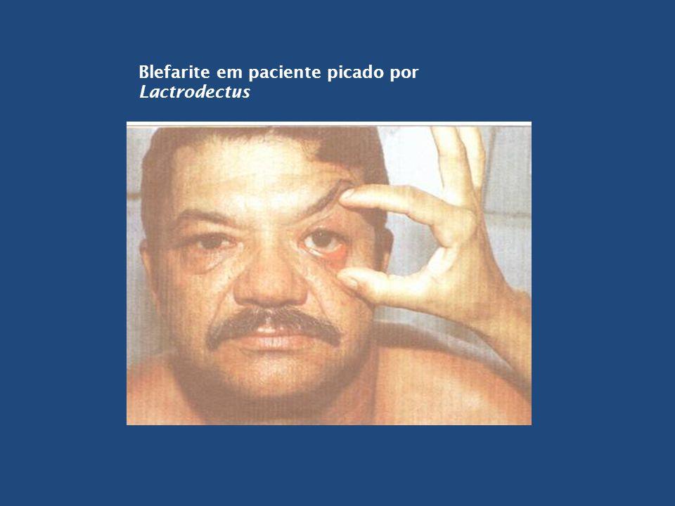 Blefarite em paciente picado por Lactrodectus