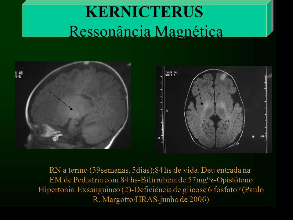 KERNICTERUS Ressonância Magnética