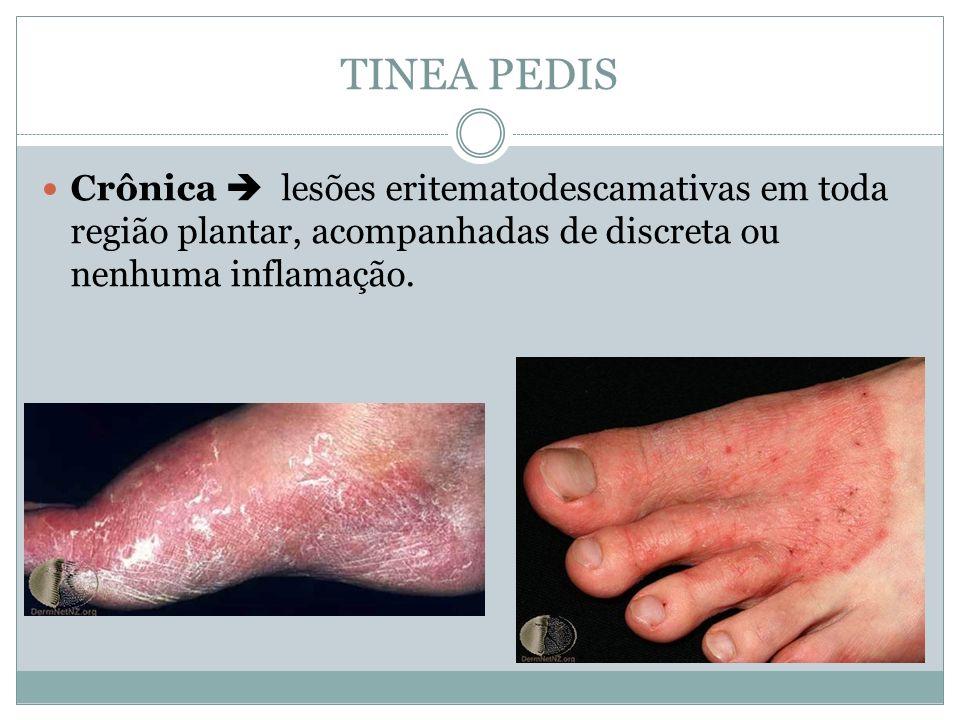 TINEA PEDISCrônica  lesões eritematodescamativas em toda região plantar, acompanhadas de discreta ou nenhuma inflamação.