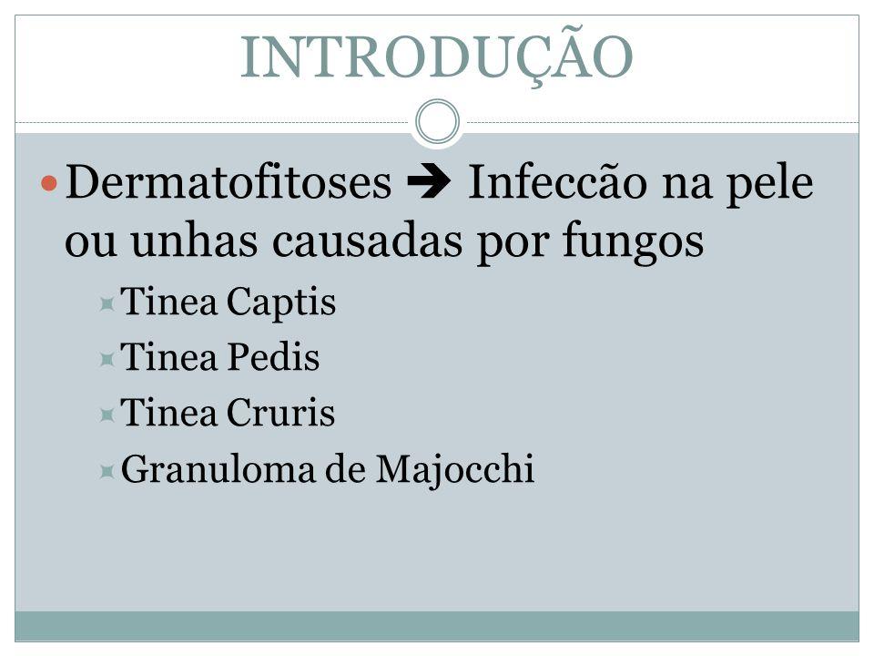 INTRODUÇÃODermatofitoses  Infeccão na pele ou unhas causadas por fungos. Tinea Captis. Tinea Pedis.