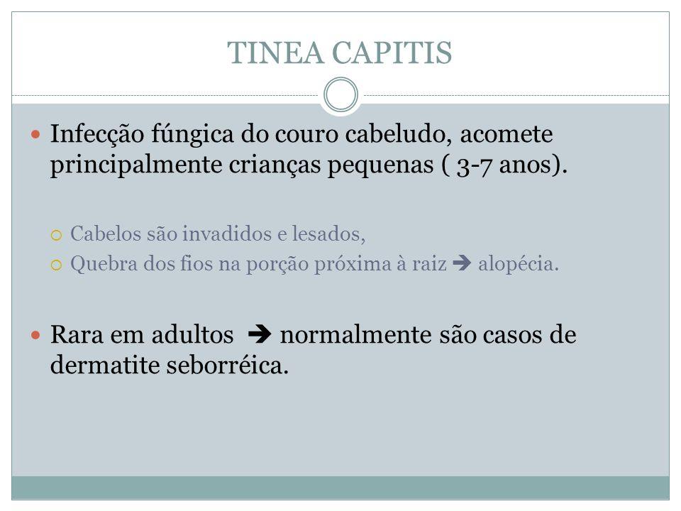 TINEA CAPITISInfecção fúngica do couro cabeludo, acomete principalmente crianças pequenas ( 3-7 anos).