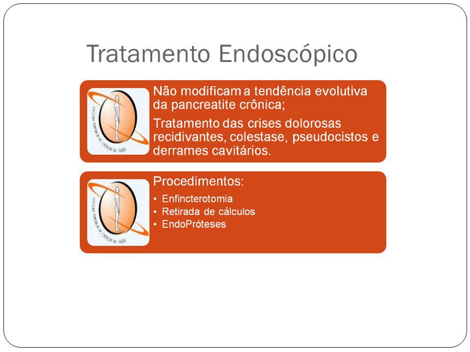 Tratamento Endoscópico