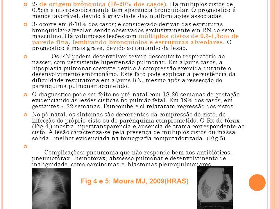 2- de origem brônquica (15-20% dos casos)