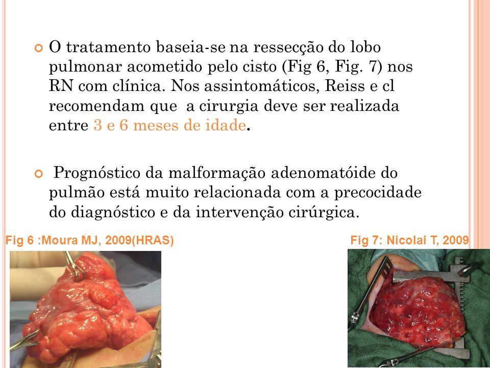 O tratamento baseia-se na ressecção do lobo pulmonar acometido pelo cisto (Fig 6, Fig. 7) nos RN com clínica. Nos assintomáticos, Reiss e cl recomendam que a cirurgia deve ser realizada entre 3 e 6 meses de idade.