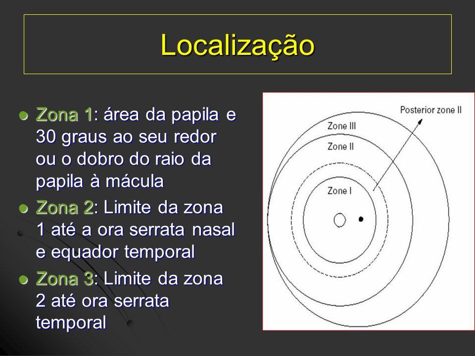 Localização Zona 1: área da papila e 30 graus ao seu redor ou o dobro do raio da papila à mácula.