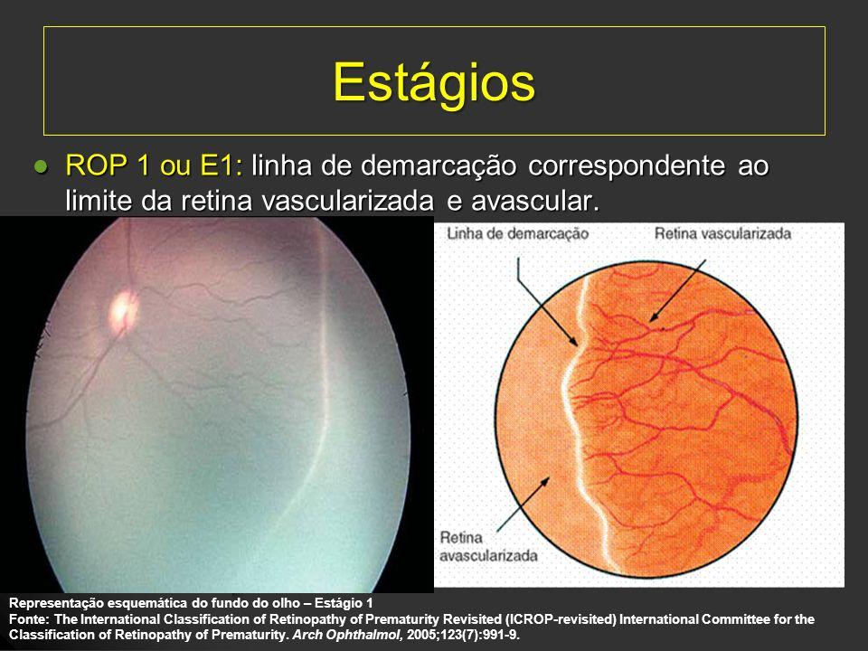 EstágiosROP 1 ou E1: linha de demarcação correspondente ao limite da retina vascularizada e avascular.