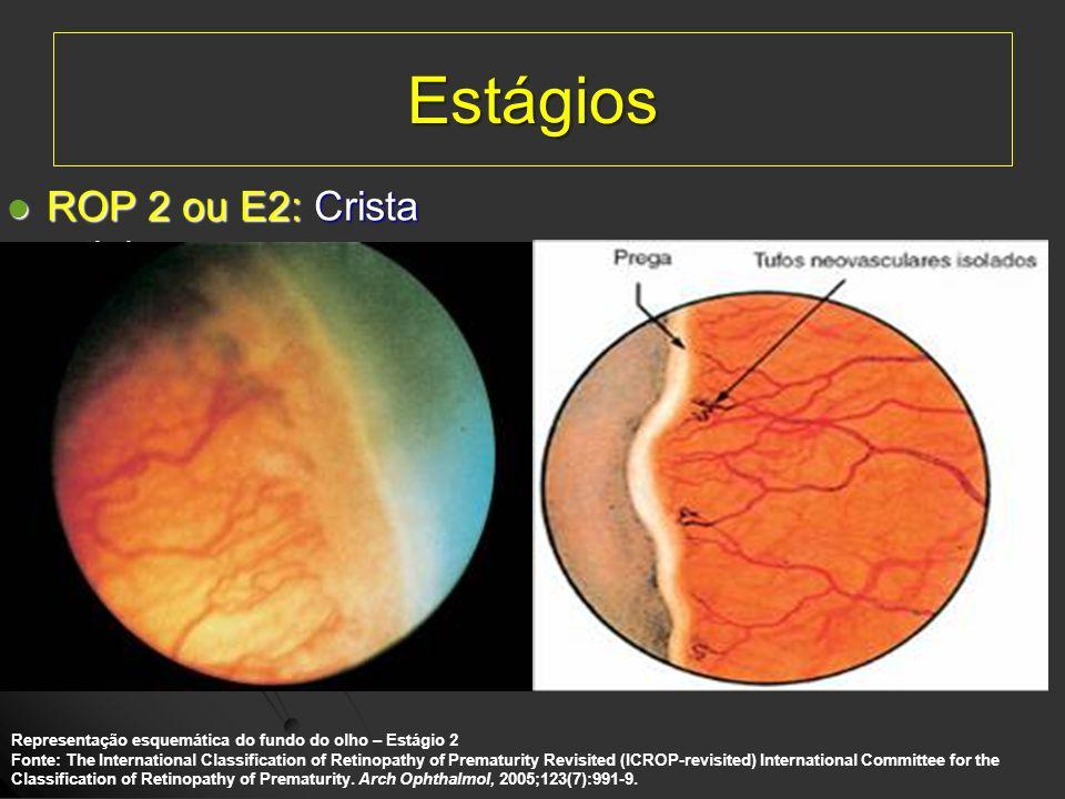 Estágios ROP 2 ou E2: Crista retiniana.