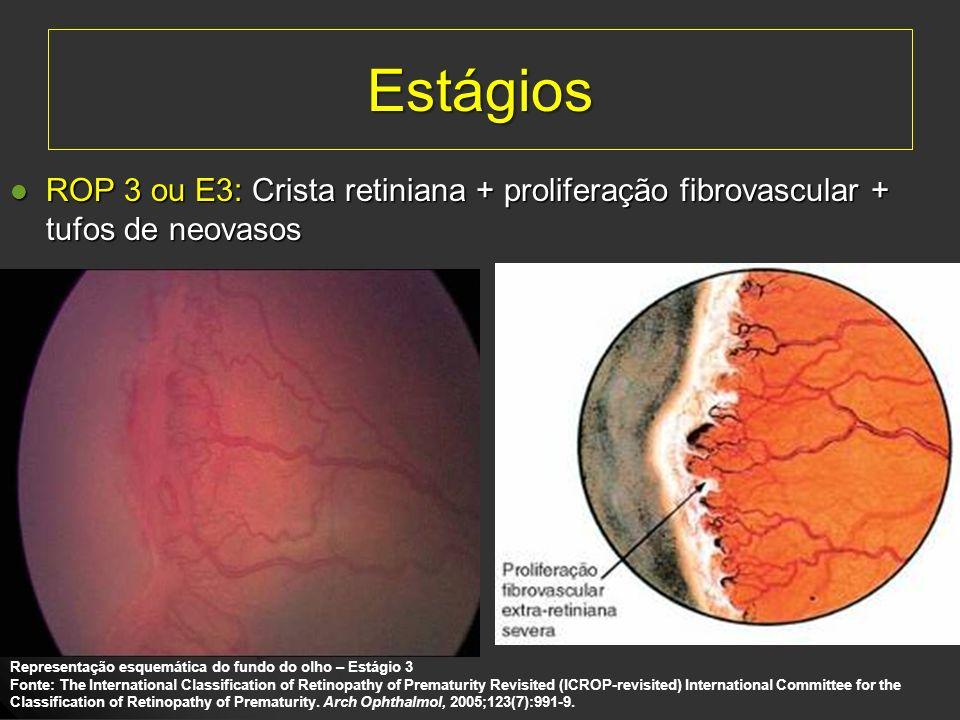 EstágiosROP 3 ou E3: Crista retiniana + proliferação fibrovascular + tufos de neovasos. Representação esquemática do fundo do olho – Estágio 3.