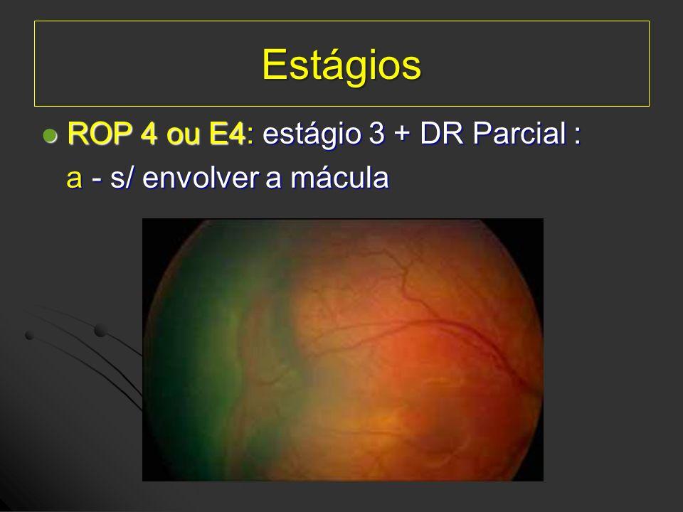 Estágios ROP 4 ou E4: estágio 3 + DR Parcial :