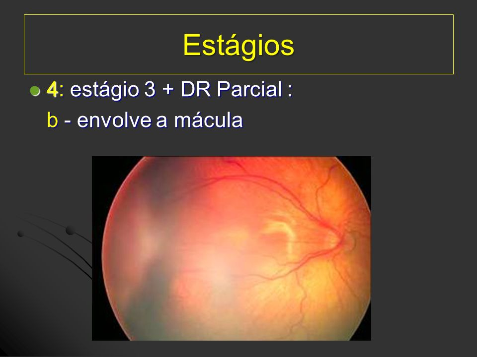 Estágios 4: estágio 3 + DR Parcial : b - envolve a mácula