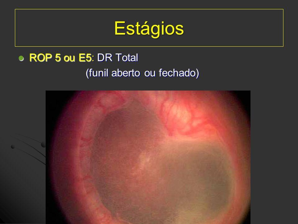 Estágios ROP 5 ou E5: DR Total (funil aberto ou fechado)