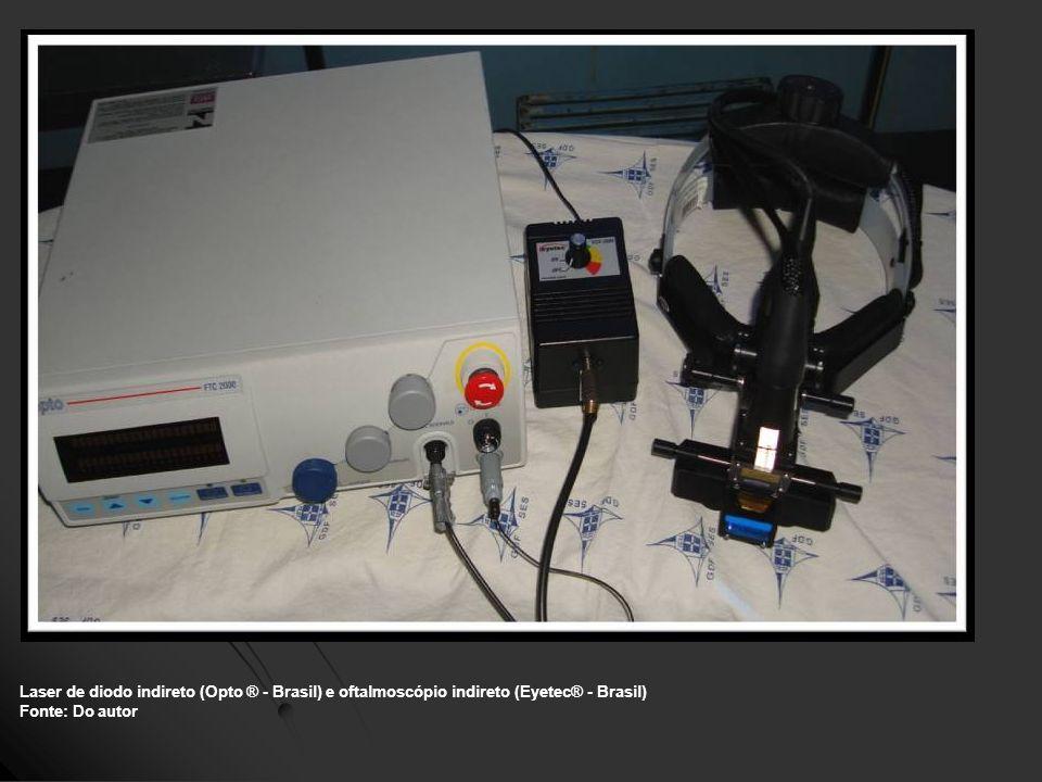 Laser de diodo indireto (Opto ® - Brasil) e oftalmoscópio indireto (Eyetec® - Brasil)