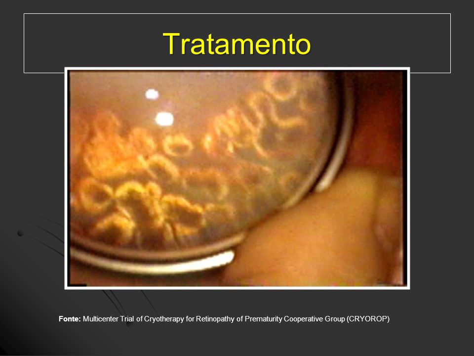 TratamentoFonte: Multicenter Trial of Cryotherapy for Retinopathy of Prematurity Cooperative Group (CRYOROP)