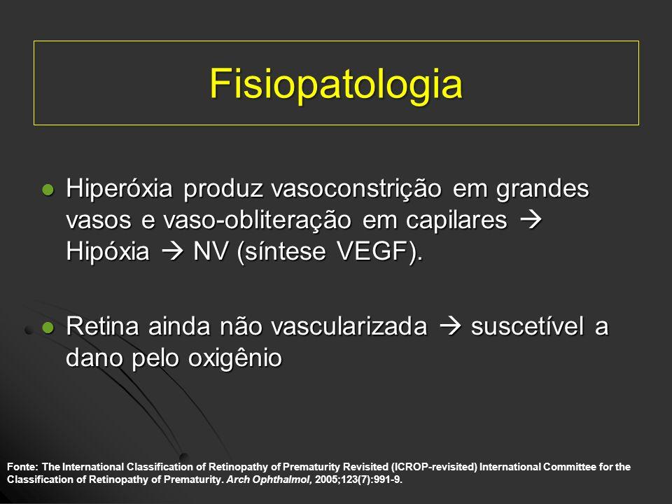 Fisiopatologia Hiperóxia produz vasoconstrição em grandes vasos e vaso-obliteração em capilares  Hipóxia  NV (síntese VEGF).