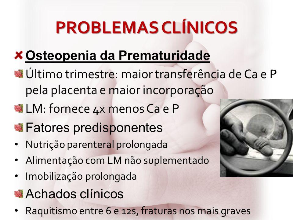 PROBLEMAS CLÍNICOS Osteopenia da Prematuridade