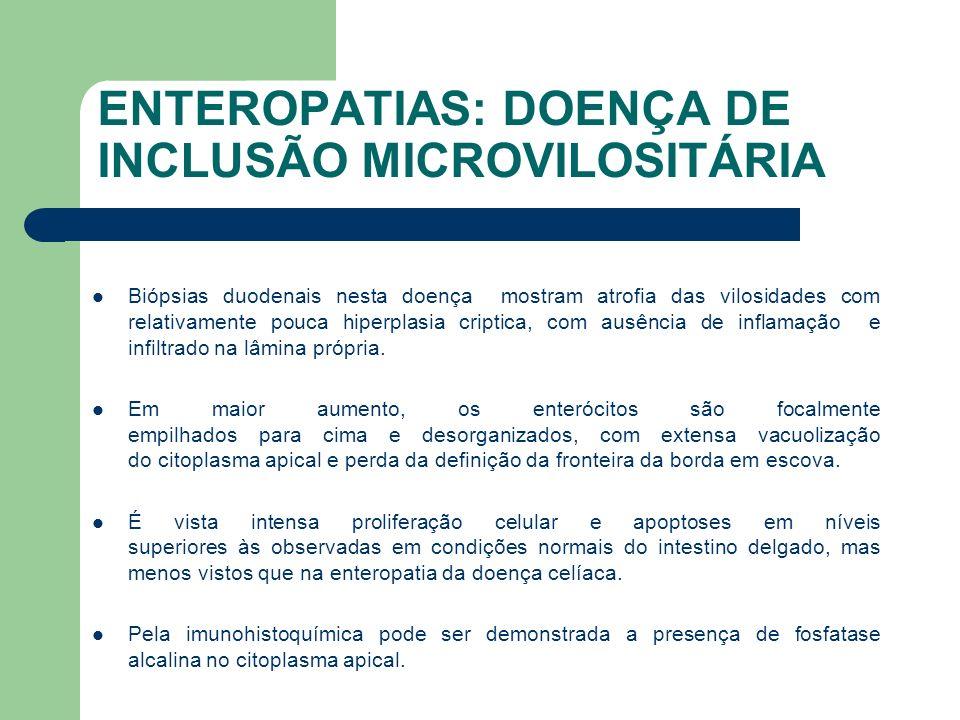 ENTEROPATIAS: DOENÇA DE INCLUSÃO MICROVILOSITÁRIA