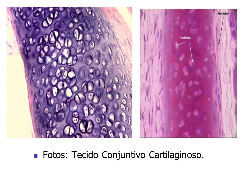 Fotos: Tecido Conjuntivo Cartilaginoso.