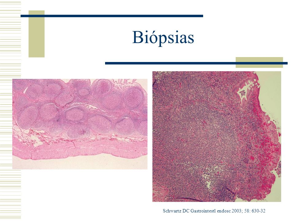 Biópsias Schwartz DC Gastrointestl endosc 2003; 58: 630-32