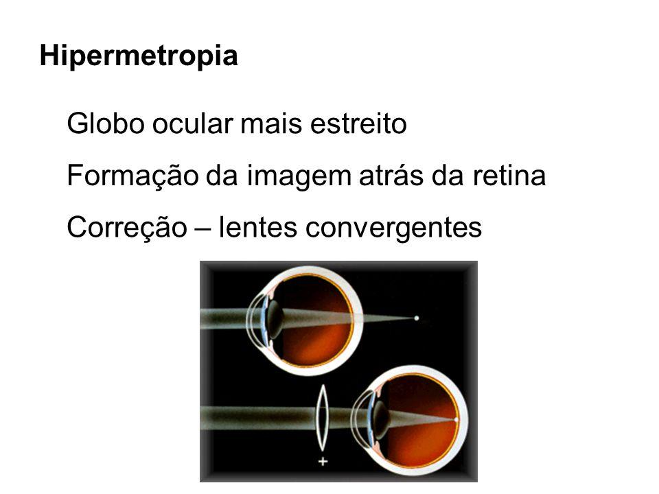 Hipermetropia Globo ocular mais estreito. Formação da imagem atrás da retina.