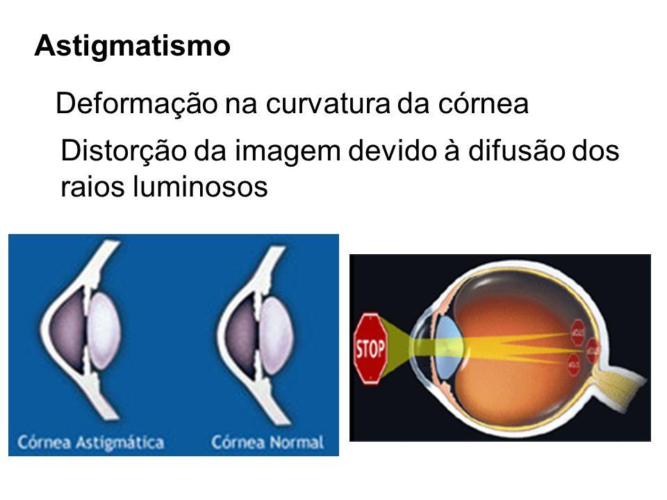 Astigmatismo Deformação na curvatura da córnea. Distorção da imagem devido à difusão dos.