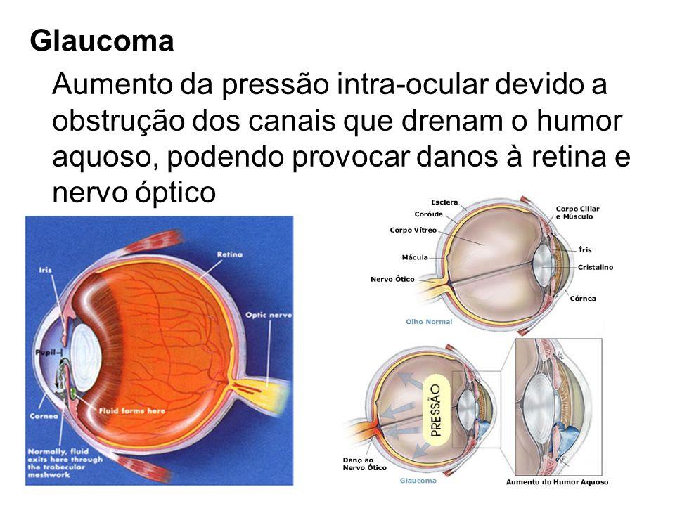 Glaucoma Aumento da pressão intra-ocular devido a. obstrução dos canais que drenam o humor. aquoso, podendo provocar danos à retina e.