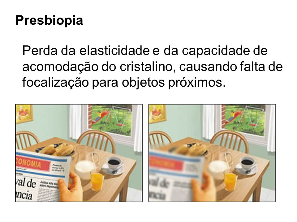 Presbiopia Perda da elasticidade e da capacidade de.