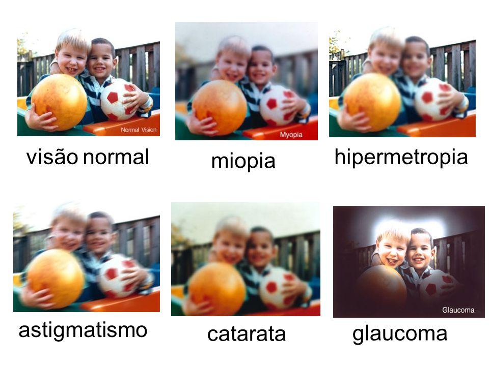 visão normal hipermetropia miopia astigmatismo catarata glaucoma