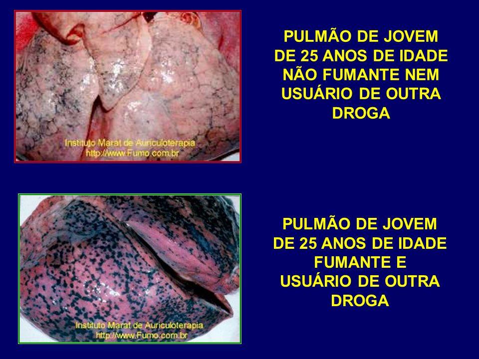 PULMÃO DE JOVEM DE 25 ANOS DE IDADE. NÃO FUMANTE NEM. USUÁRIO DE OUTRA. DROGA. PULMÃO DE JOVEM.