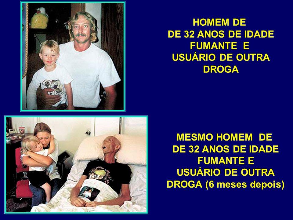 HOMEM DE DE 32 ANOS DE IDADE. FUMANTE E. USUÁRIO DE OUTRA. DROGA. MESMO HOMEM DE. DE 32 ANOS DE IDADE.
