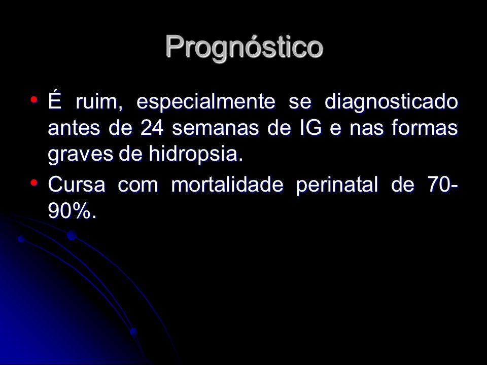 PrognósticoÉ ruim, especialmente se diagnosticado antes de 24 semanas de IG e nas formas graves de hidropsia.