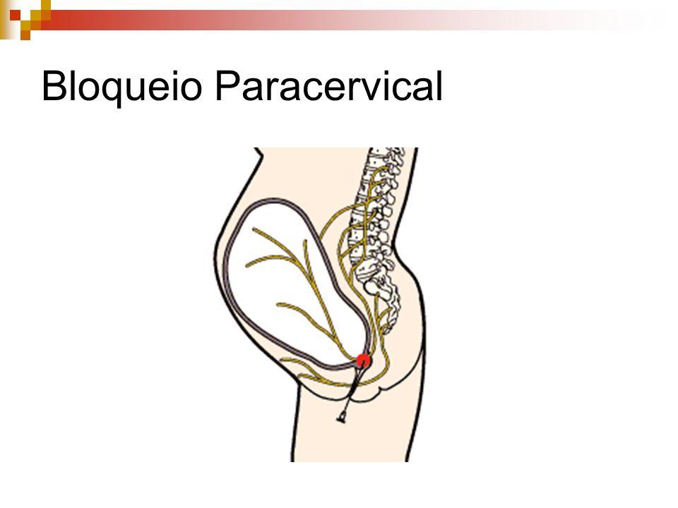 Bloqueio Paracervical