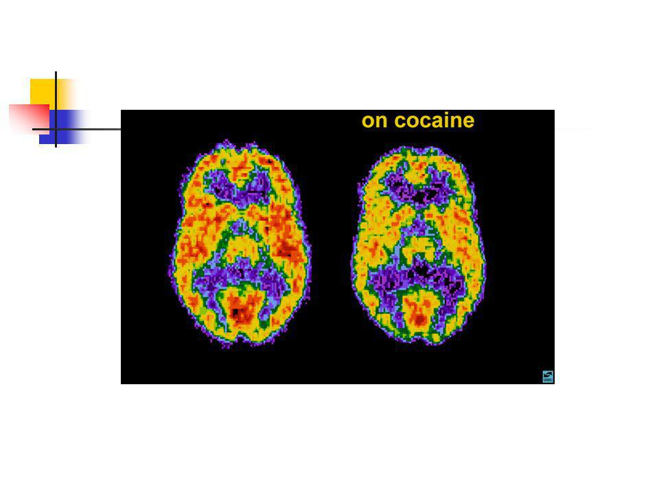 Slide 16: Positron emission tomography (PET) scan of a person on cocaine