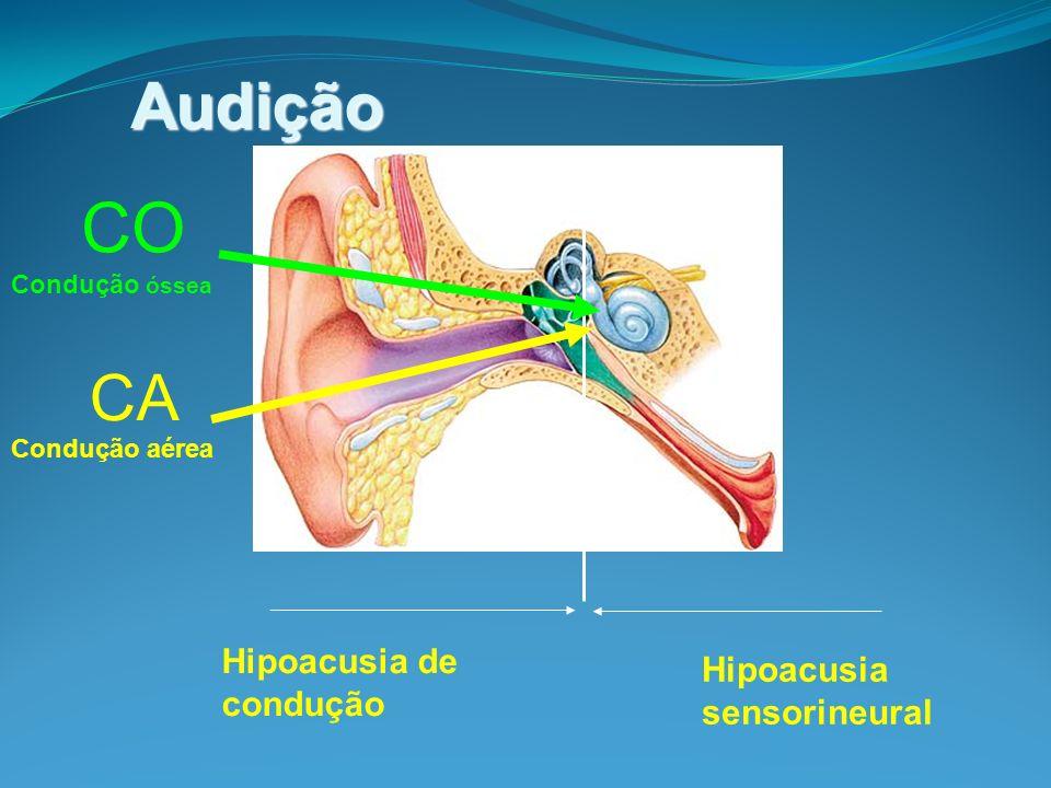 CO Audição CA Hipoacusia de condução Hipoacusia sensorineural