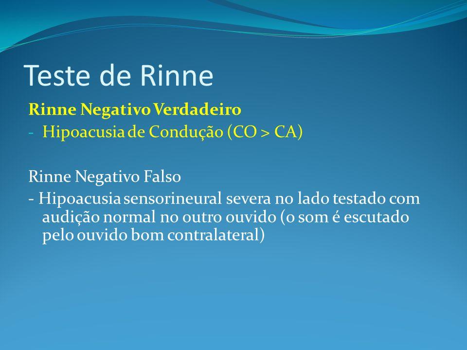 Teste de Rinne Rinne Negativo Verdadeiro