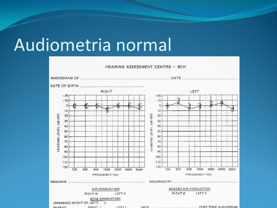 Audiometria normal