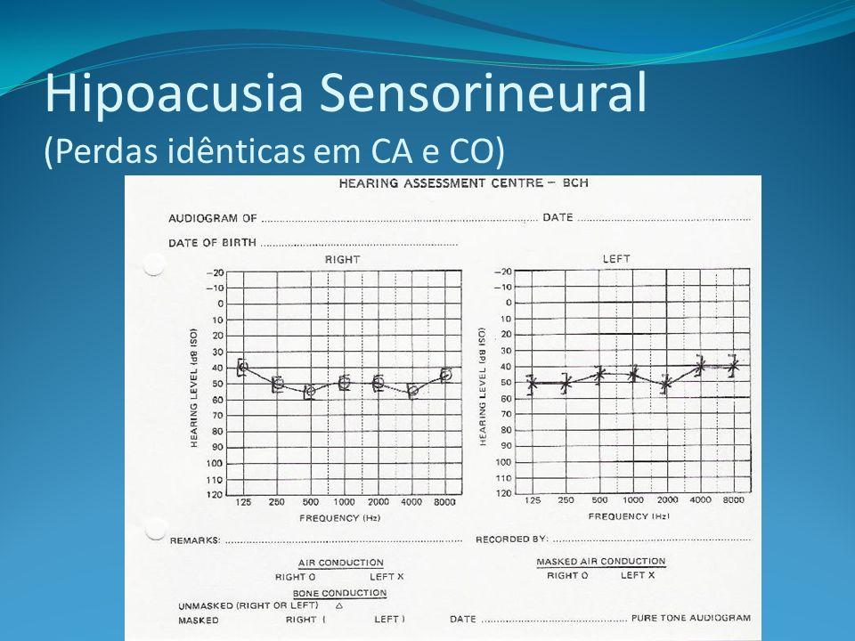 Hipoacusia Sensorineural (Perdas idênticas em CA e CO)