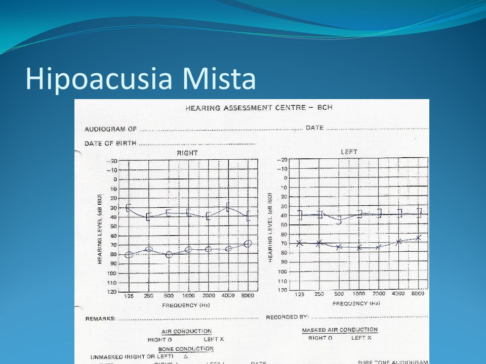 Hipoacusia Mista