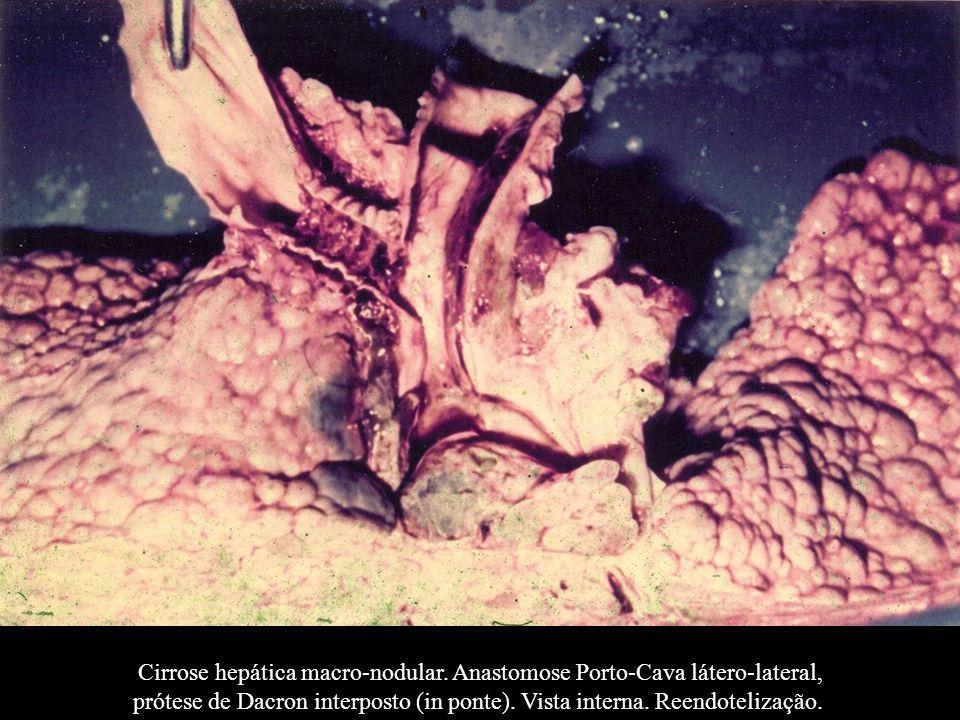 Cirrose hepática macro-nodular. Anastomose Porto-Cava látero-lateral,