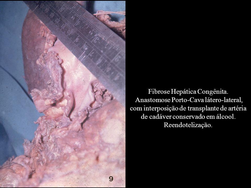 Fibrose Hepática Congênita.