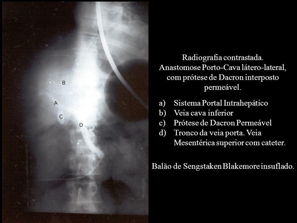 Radiografia contrastada.