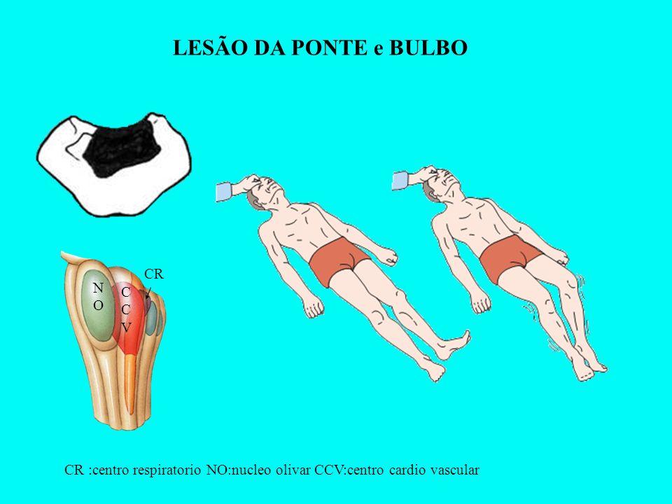 LESÃO DA PONTE e BULBO CR NO CCV