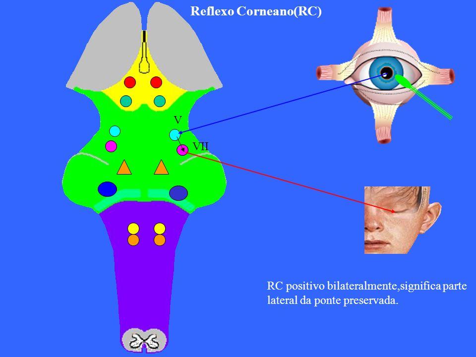 Reflexo Corneano(RC) V VII