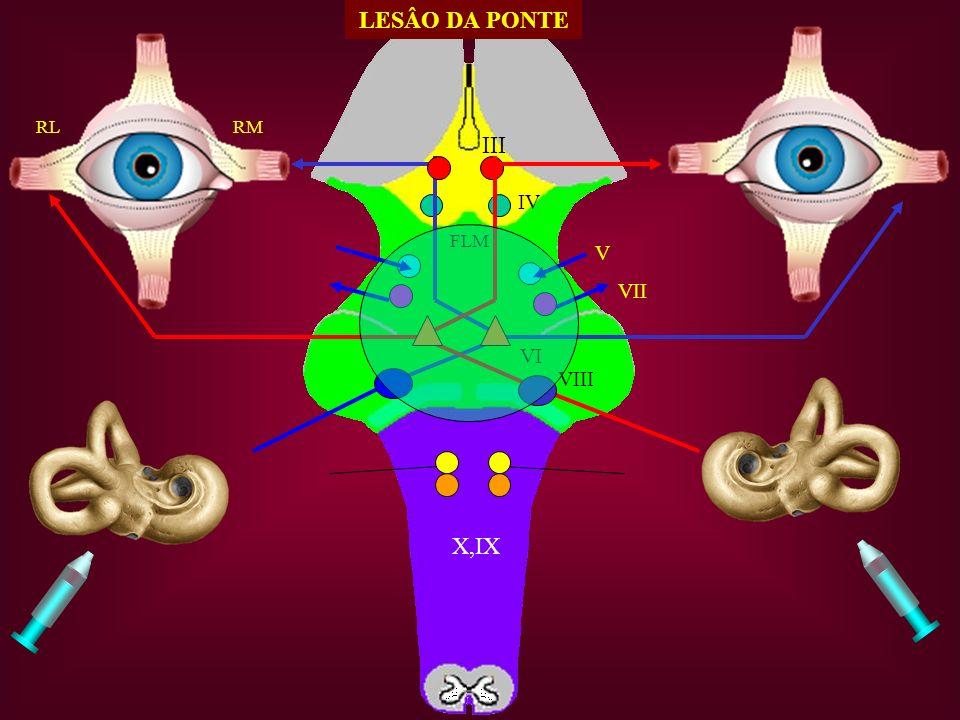LESÂO DA PONTE RL RM III IV FLM V VII VI VIII X,IX