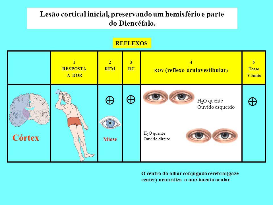  Córtex Lesão cortical inicial, preservando um hemisfério e parte