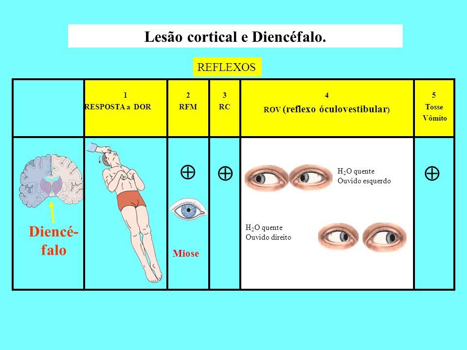 Lesão cortical e Diencéfalo. ROV (reflexo óculovestibular)