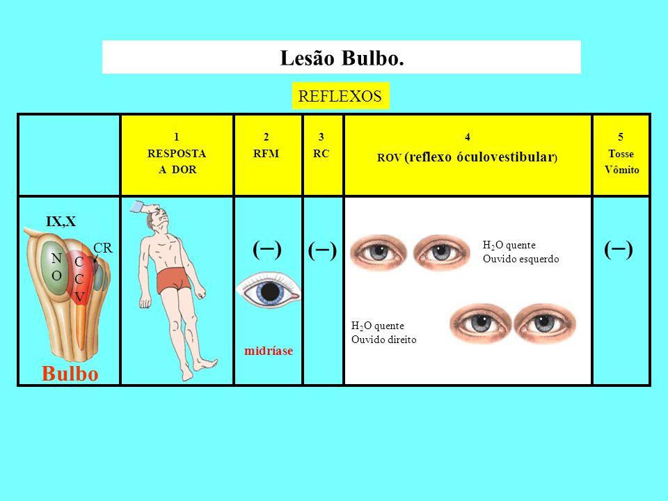 ROV (reflexo óculovestibular)