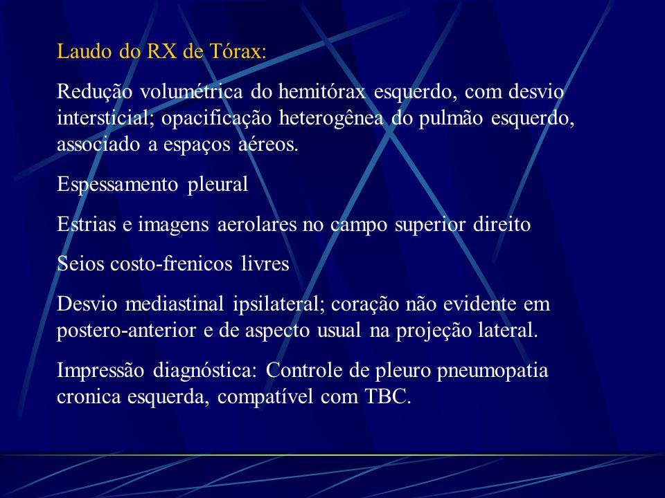 Laudo do RX de Tórax: