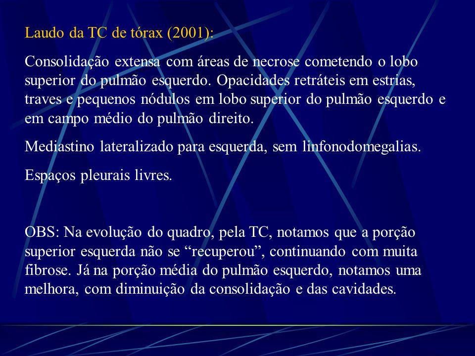 Laudo da TC de tórax (2001):
